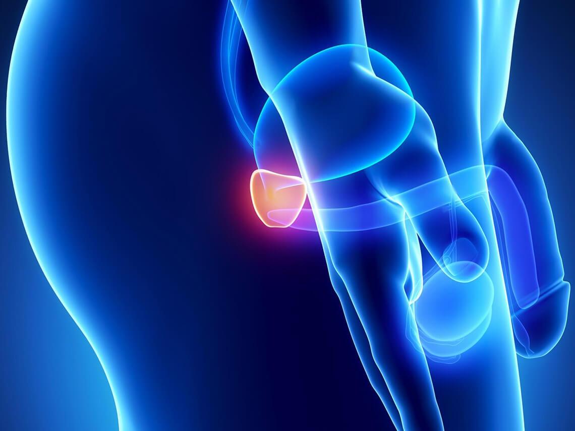 congestive prostatitis signs and symptoms)